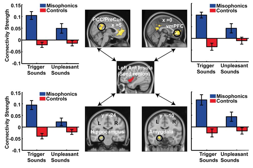 NEW Book: Understanding and Overcoming Misophonia